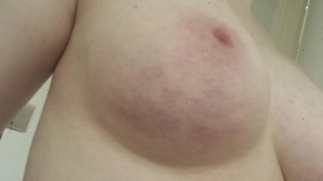 Breast Bruising 42