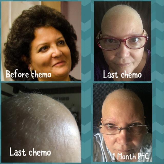 6 Months Hair Regrowth Chemo Curls